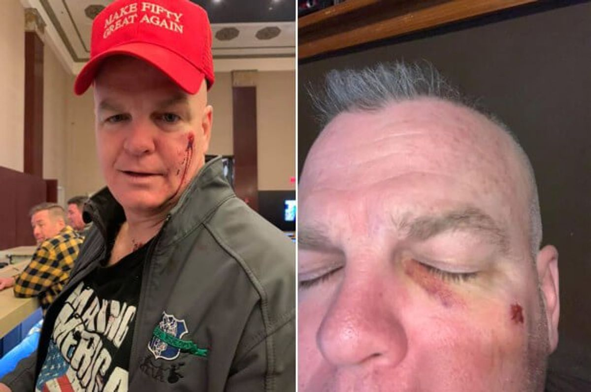 Leftist Slaps Juvenile Over Trump Support; Woman Triggered by Red Punches Retired Cop Same Reason