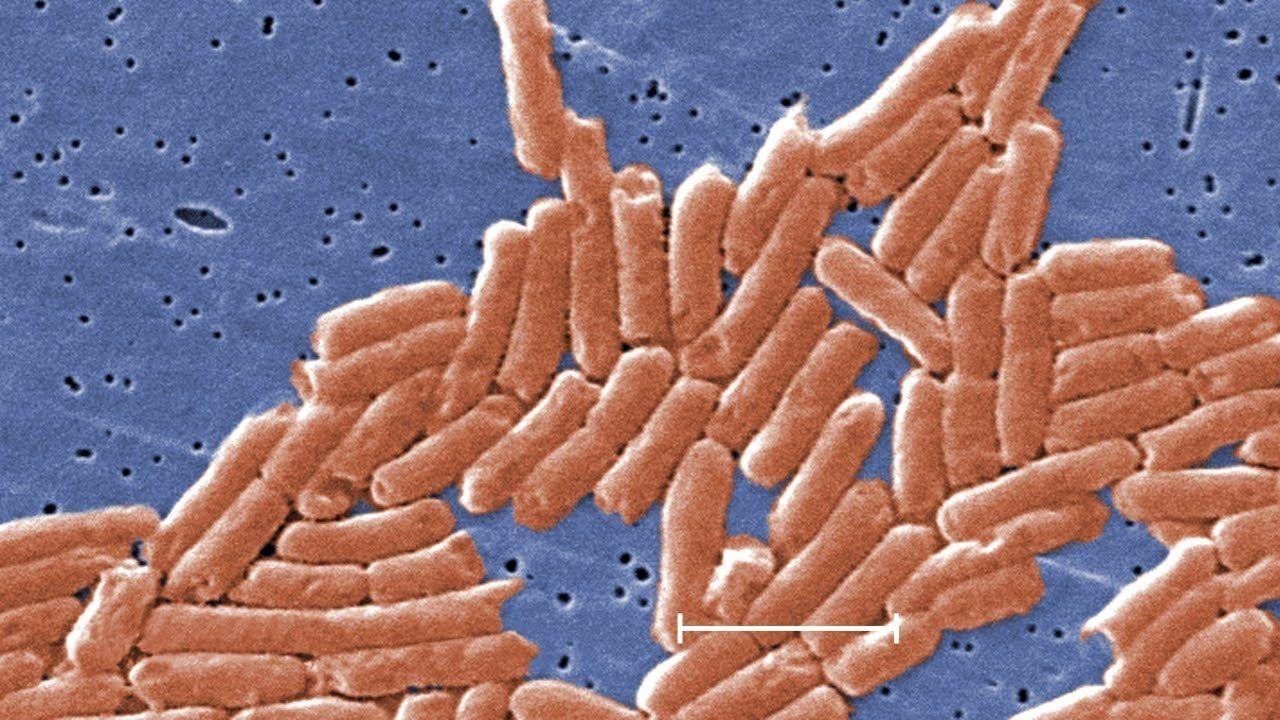 CDC warns of antibiotic-resistant salmonella
