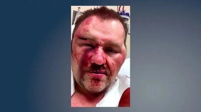 Photo provided by Achille Mayor David Northcutt after attack at a convenience store in March 2019.